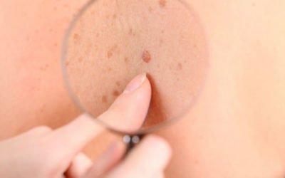 Heller und schwarzer Hautkrebs