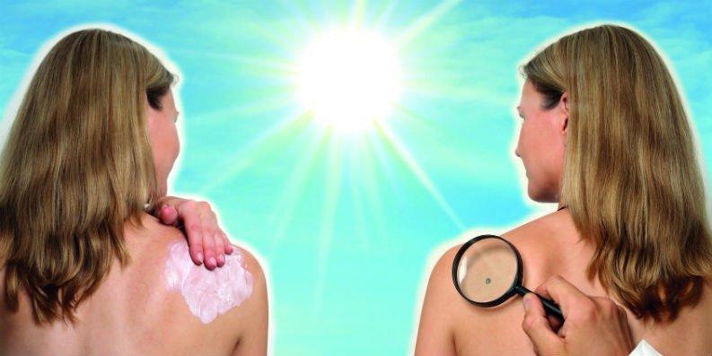 Sonnenschutz – absolut wichtig!