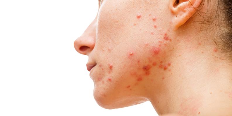 Akne – Schonende Pflege im Sommer