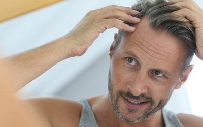 Haarpflege – Kopfschuppen ... schon gewusst?