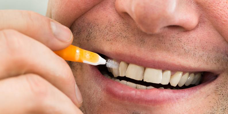 Interdentalpflege: Zahnzwischenräume brauchen Spezialbehandlung