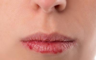 """""""Problemzonen"""" des Winters – Lippen ... schon gewusst?"""