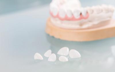 """""""Die Dritten"""" – Zahnersatz reinigen und pflegen ... schon gewusst?"""