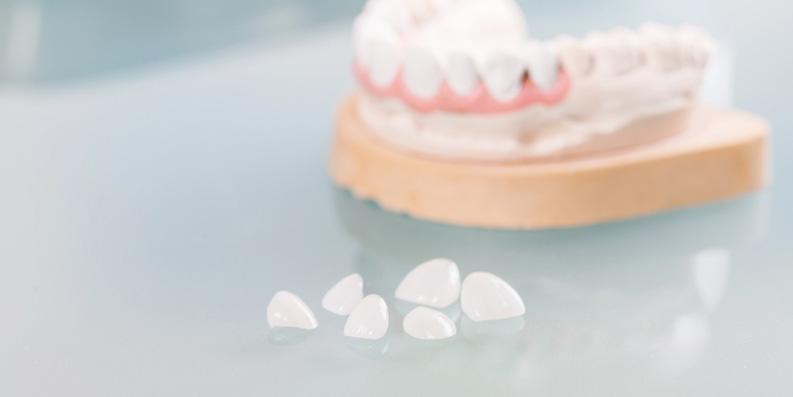 Zahnpflege – Prothese ... schon gewusst?